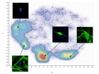 How AI is advancing neurodegenerative disease research