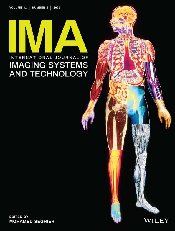A novel and efficient deep learning approach for COVID‐19 detection using X‐ray imaging modality - Bhardwaj - - International Journal of Imaging Systems and Technology